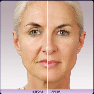 Juvederm Treatment Before & After