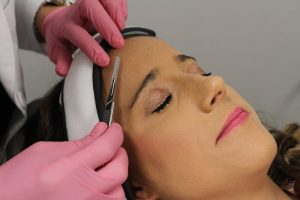 dermaplaning at Aurora Med Spa in St. Louis